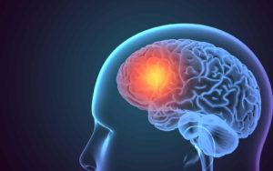 Gehirn mit leuchtender Zone, die für den Preisschmerz steht